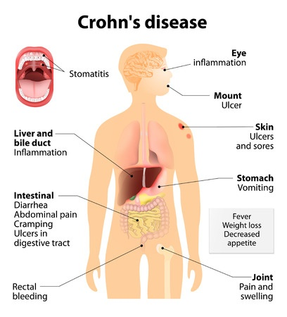 crohn's disease signs and symptoms