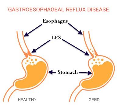 what is gerd? gastroesophageal