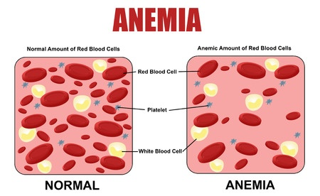 Iron Deficiency Anemia – Overview and Treatment Options