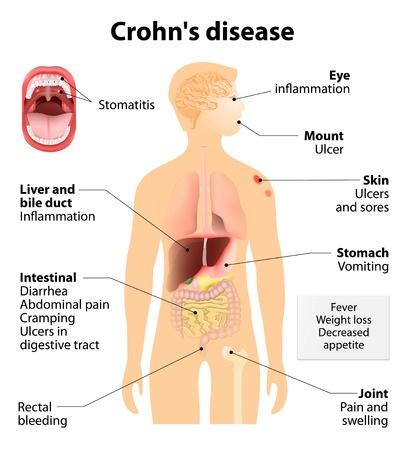 crohn's disease signs and symptoms