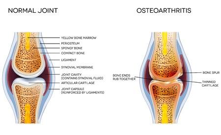 normal joint versus osteoarthritis