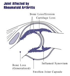 rheumatoid arthritis joint